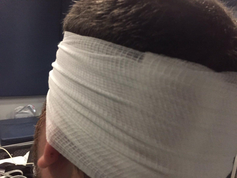 Injured CBS 6 photojournalist