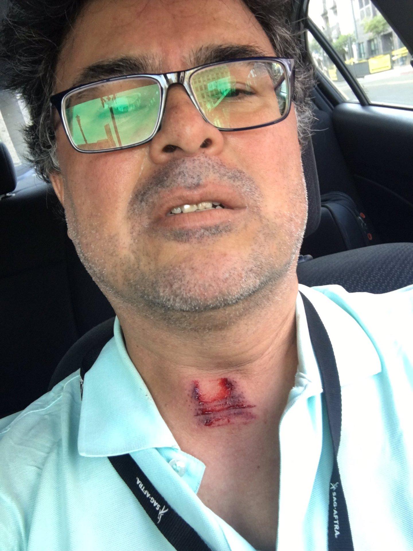 Guzman_Lopez_assault_0531_CA.jpg